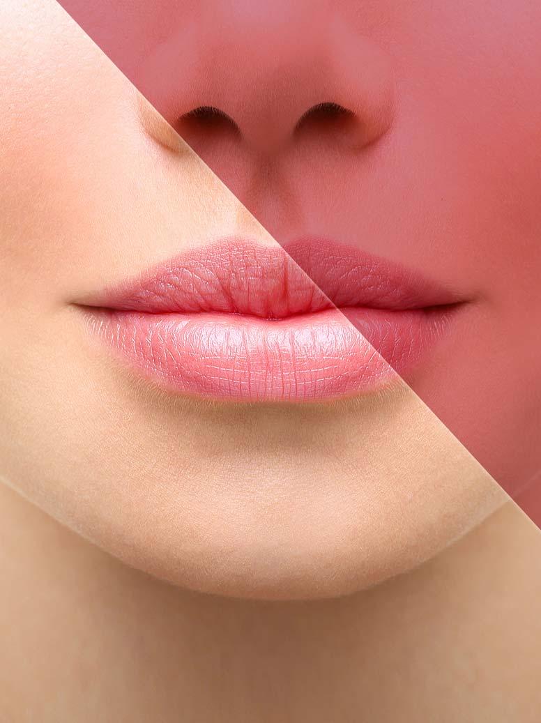 Le botox : traitements des rides et de la transpiration